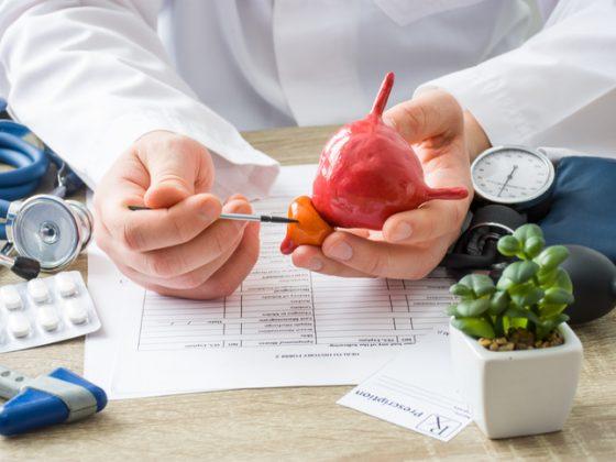 Ressonância magnética multiparamétrica da próstata: como é feito o exame?